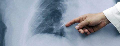Anuncian protocolo para la detección oportuna de cáncer de pulmón