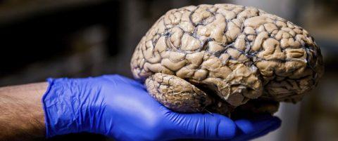 Identifican el mecanismo del cerebro que induce a las personas a rascarse