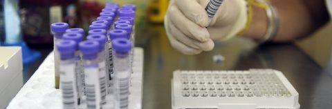 Científicos probarán vacuna de larga duración contra el VIH