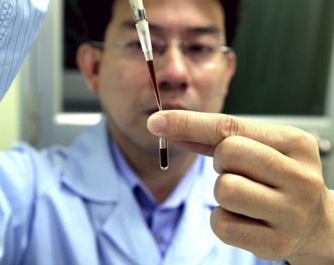 Científicos mexicanos desarrollan método de biopsia cerebral menos invasivo