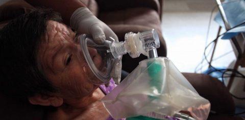 Hasta 90% de pacientes con esclerodermia ven afectado sistema respiratorio