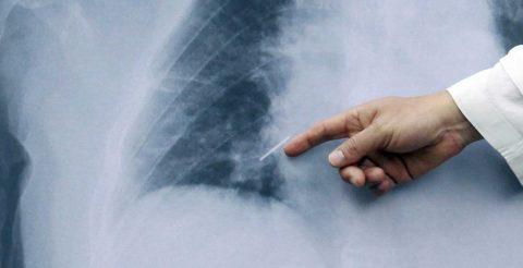 Diagnóstico tardío causa daños cerebrales a pacientes con cáncer de pulmón