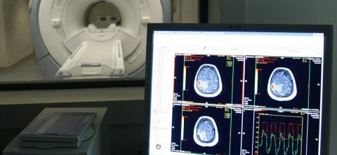 Descubren una nueva alteración en el cerebro de las personas con alzheimer